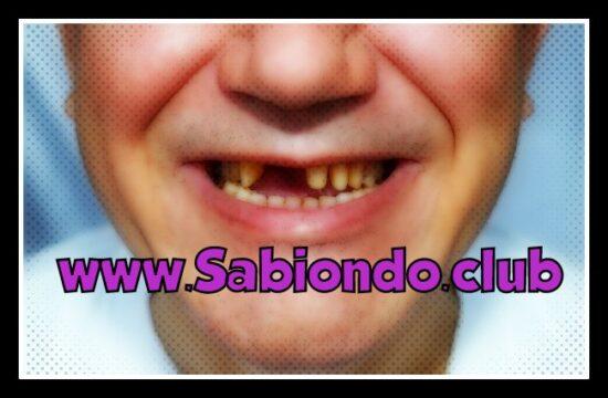 por qué se caen los dientes en adultos realmente